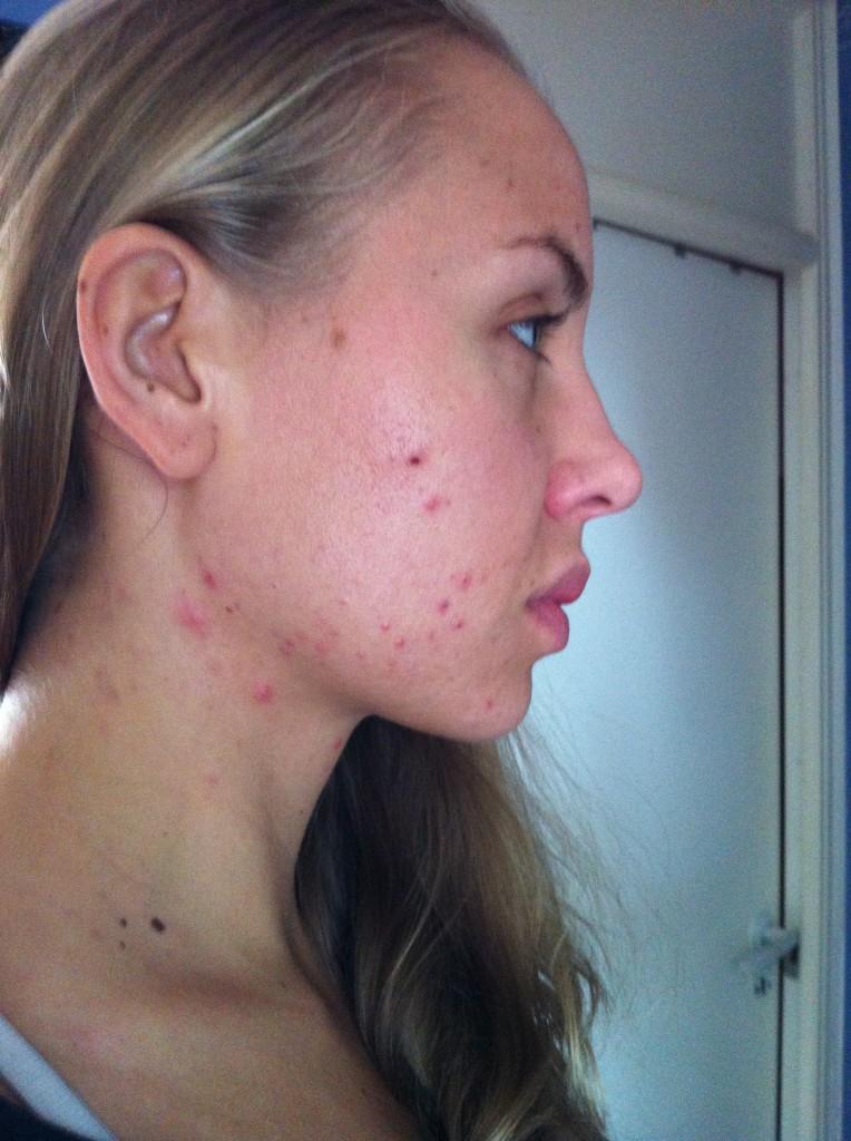hormonell obalans acne