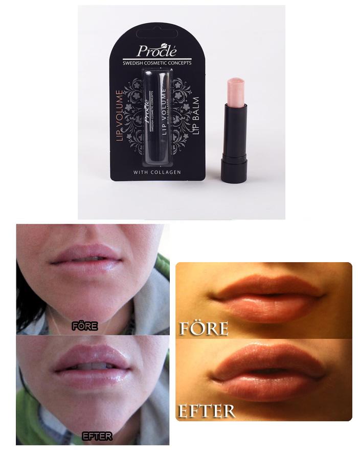 procle lip volume