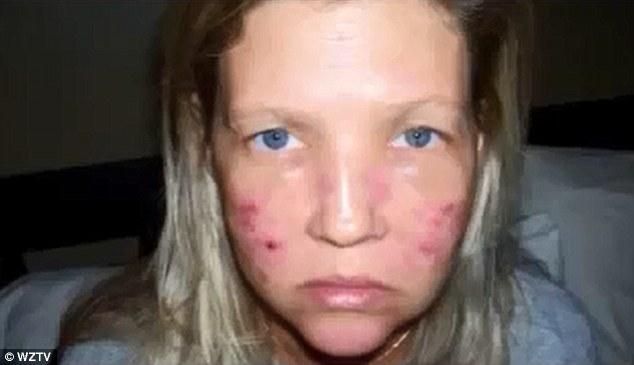 Carroll i England fick en laserbehandling som blev katastrofal.