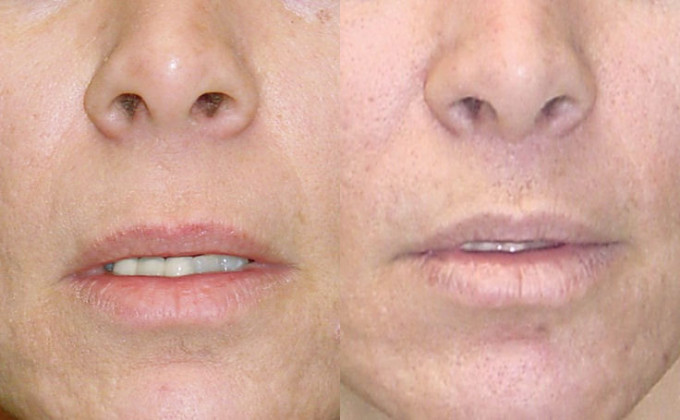 lip-lift-before-after-f-119