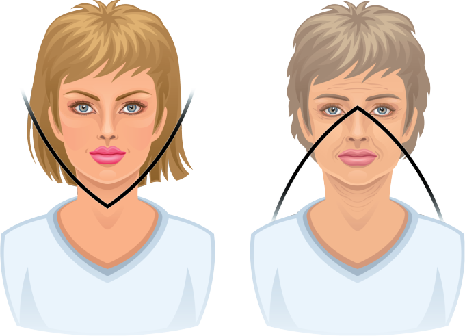V Soft Lift har fått sitt namn efter ansiktets förändring med åldrandet från V format till ett omkastat V med åldrandet.
