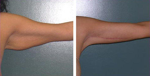 brachioplasty-after-significant-weight-loss