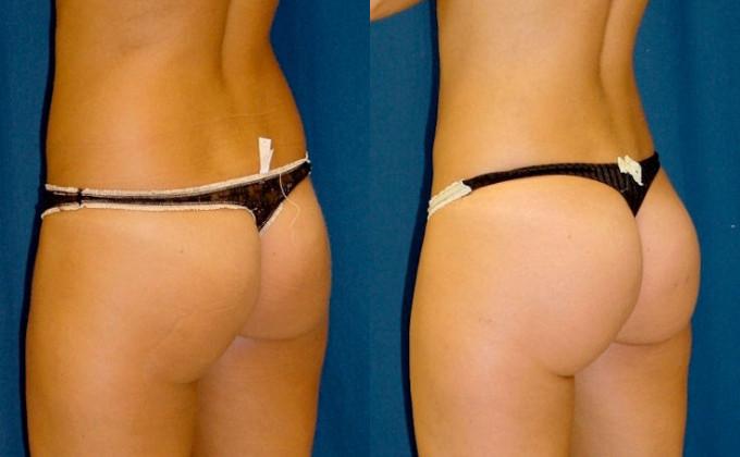 brazilian-butt-lift-before-after-a-183