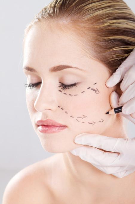 Trådlyft eller V Soft Lift som det också heter är en lika lätt behandling som fillers.