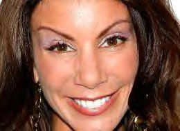 Höga ögonbryn som här ett ett klart tecken på botox. Tyvärr inte en naturlig look.