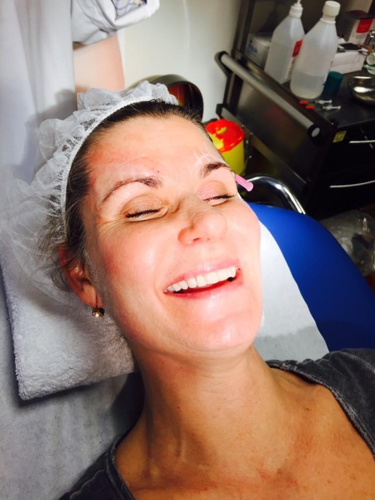 Helena fick en V Soft Lift behandling. Då får man ett minilyft och kan direkt efteråt återgå till sina dagliga sysslor.