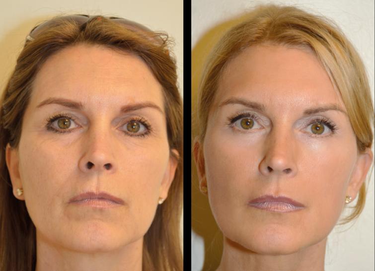 Här är min fina väninna Maria, 50 år, före och efter en V SoftLift. Visst blir det ett naturligt lyft och huden får en lyster samt åtstramning.